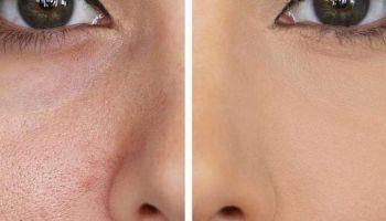 أفضل ماسكات للتخلص من مسامات الوجه الواسعة